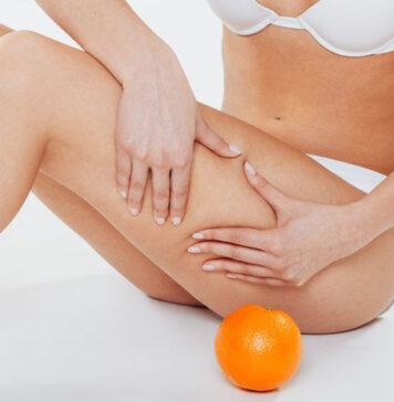 Usuwanie cellulitu