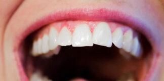 Najczęstsze problemy z zębami